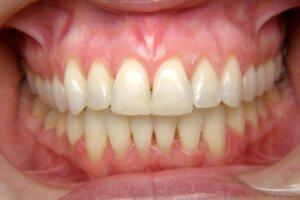 יישור שיניים למבוגרים אחרי