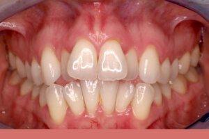 יישור שיניים למבוגרים לפני